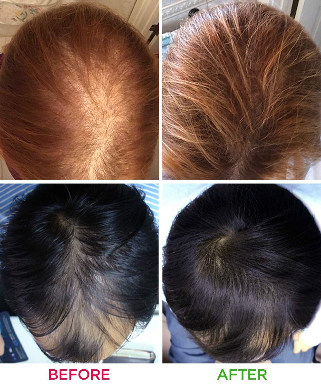 Hair Regrowth Helmet Lllt 160 Diodes Hair Growth Device Reduce Hair Loss Laser Treatment Hair Fast Regrowth Helmet Cap Massager Beauty & Health