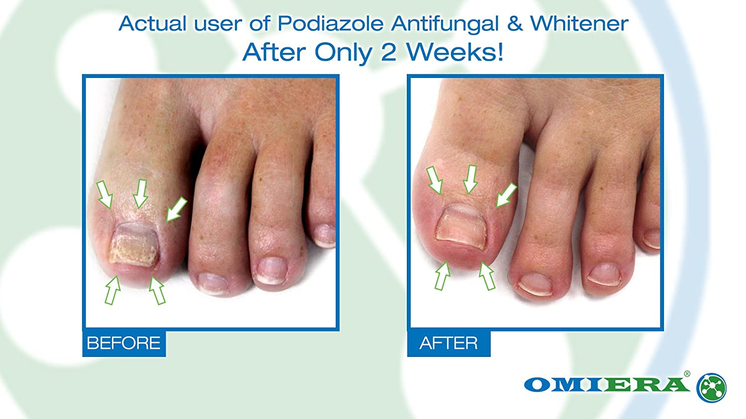 Amazon.com : Omiera Labs Podiazole Toenail Fungus Treatment(0.23 fl ...