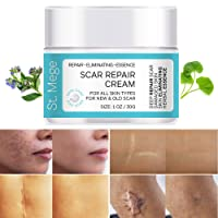 Scar Removal Cream, Scar Cream For Old Scars - Stretch Mark Removal Cream for Men & Women - Stretch Marks Relief and Burns Repair, Face Skin Repair Cream