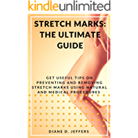 Stretch Marks: The Ultimate Guide: Get useful tips on preventing and removing stretchmarks using natural and medical procedures (English Edition)