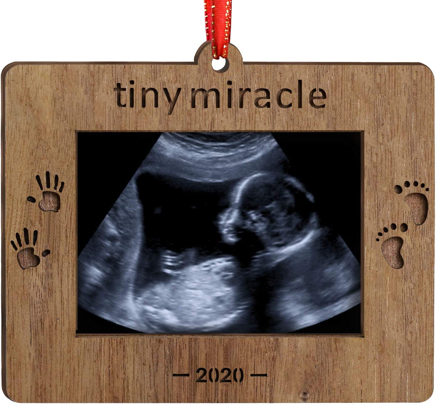 Creawoo Nature Wood Christmas Ornament Baby's First Christmas Baby Gift Sonogram Picture Frame Ultrasound Photo Frame Tiny Miracle Keepsake for Expecting Parents and Grandparents (Tiny Miracle)
