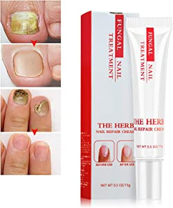 Nail Repair Cream, Toenail Fungus Treatment Gel Nail Growth & Conditioning Cuticle Cream Stops Splits Chips Cracks Restores The Healthy Appearance of Nails