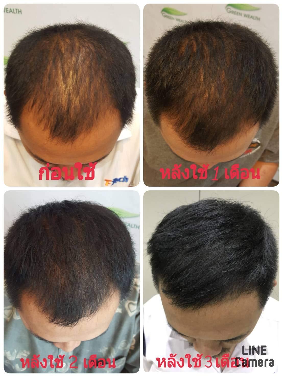 Neo Hair Lotion 120ml Hair Treatment Hair Root nutrients (120Ml x 3Bottle) by Poj Shop