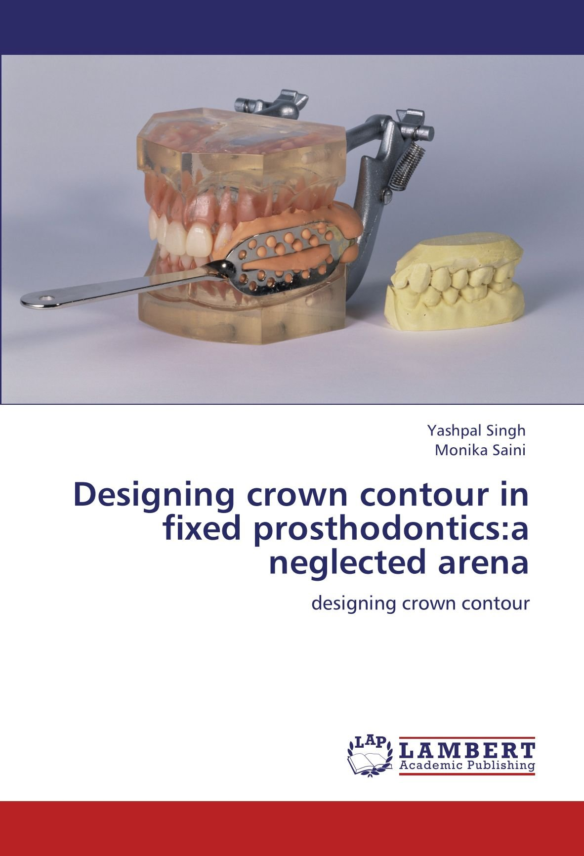 Designing crown contour in fixed prosthodontics:a neglected arena: designing crown contour