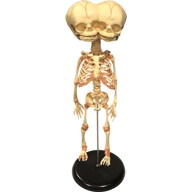 Asylum Zone Triclops Siamese Twin Fetus Skeleton