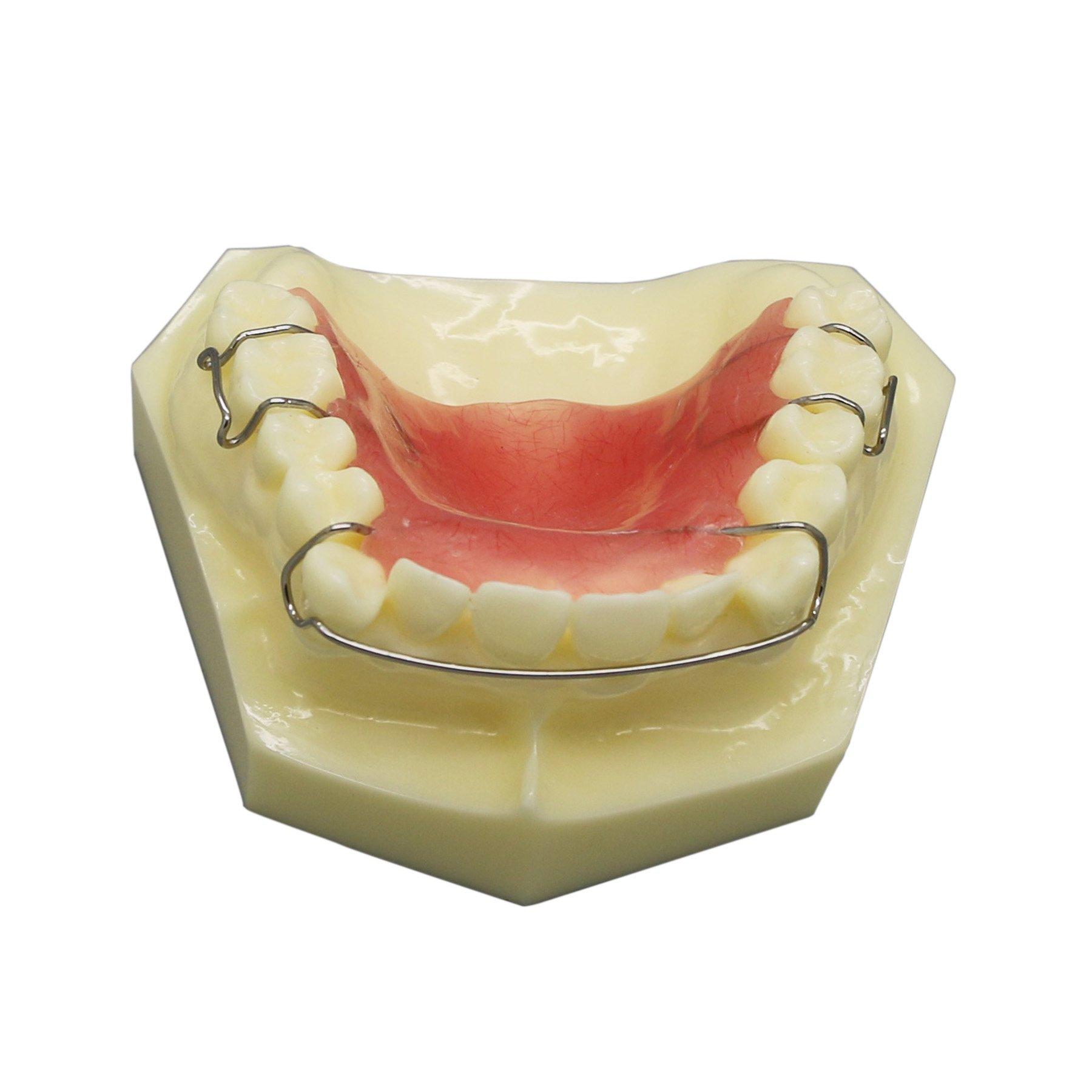 Dental Model #3007 01 - Hawley Retainer Model