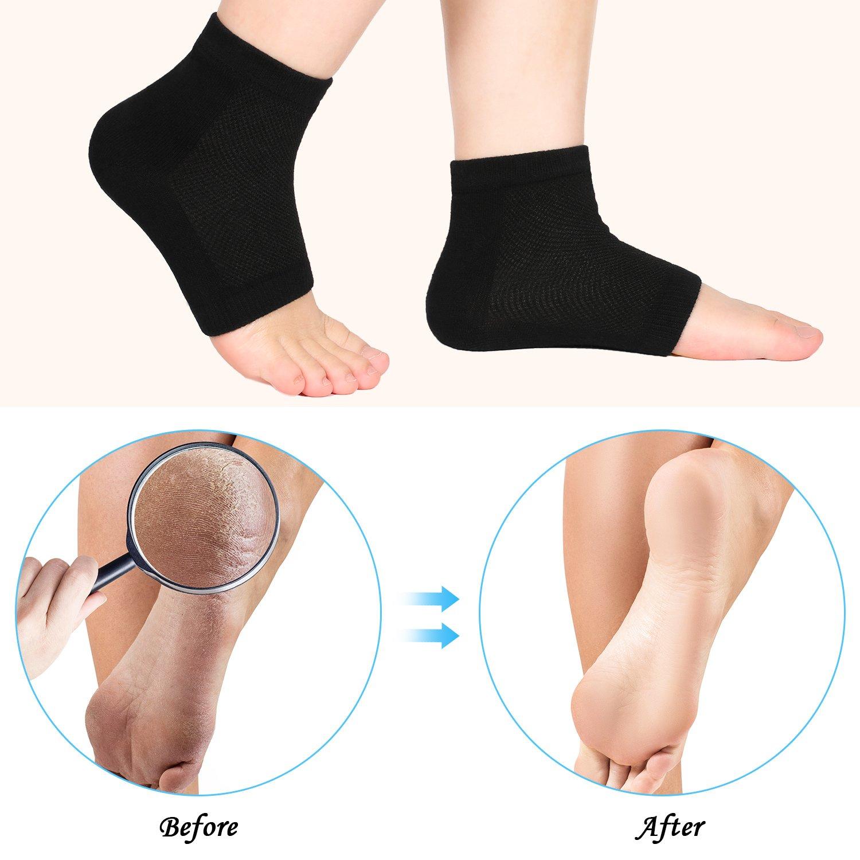 Bememo Soft Ventilate Gel Heel Socks Open Toe Socks for Dry Hard Cracked Skin Moisturizing Day Night Care Skin, 3 Pairs (Black) by Bememo (Image #2)