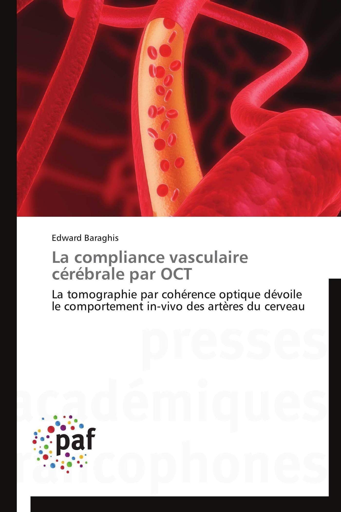 Read Online La compliance vasculaire cérébrale par OCT: La tomographie par cohérence optique dévoile le comportement in-vivo des artères du cerveau (Omn.Pres.Franc.) (French Edition) PDF