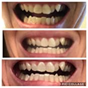 Colors Photos Clear Aligners