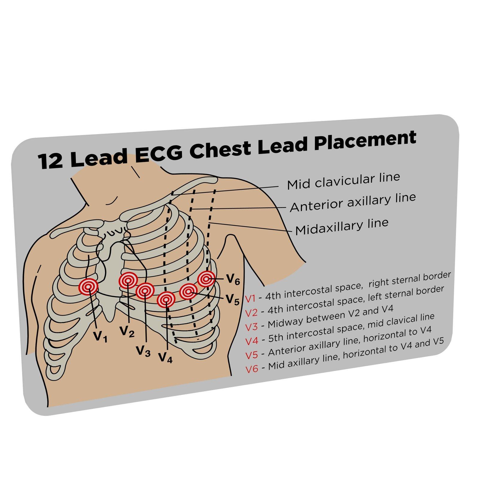 12 lead ecg chest lead placement (paramedic, nurse, ekg) pocket reference  card: amazon co uk: printedid cards: 0029882190654: books