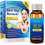Ulensy Skin Tag Remover - Extra Strength Skin tag Removal Liquid - Made of Natural Plant Extracts - Fast-Acting Formula…