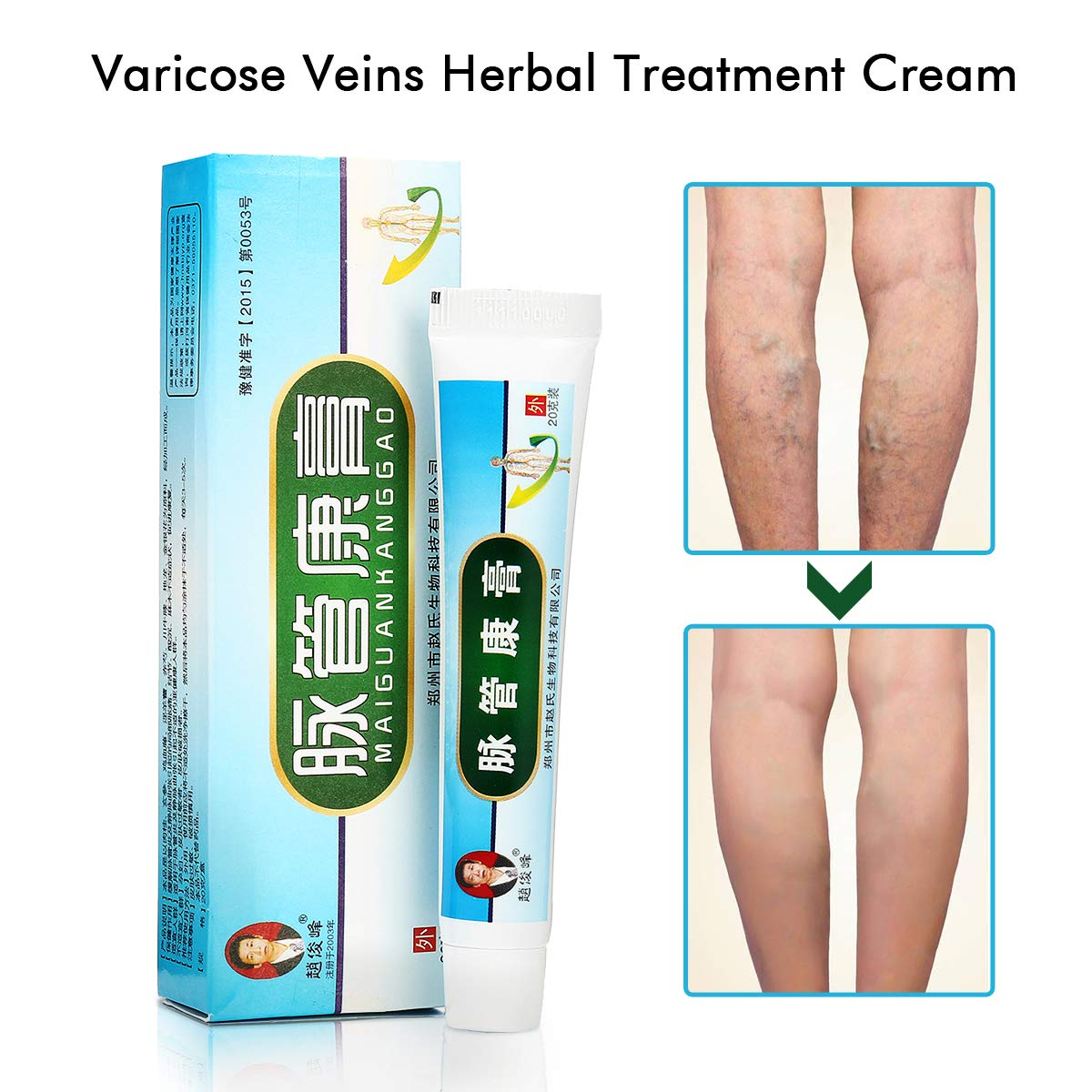 varicose veins pain relief