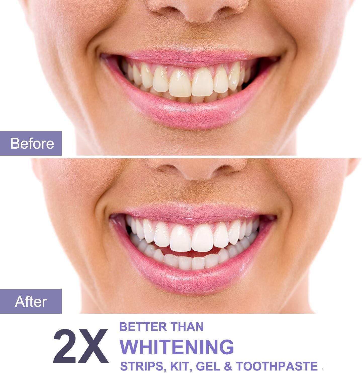 Polvo Blanqueador Dental - Liberex Polvo Dental de Carbón Activado ...