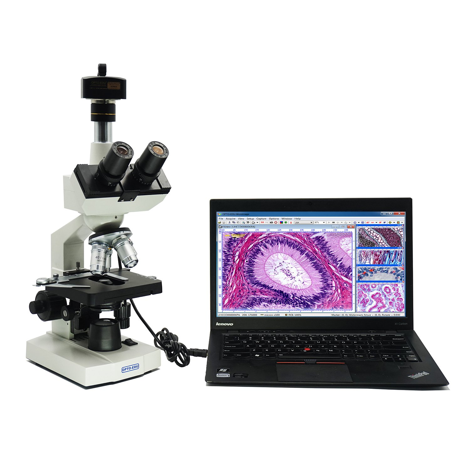 OPTO-EDU A11.1009-F5M 40X-2000X Digital Lab Trinocular Compound LED Microscope with 5 MP Digital Camera and Double Layer Mechanical Stage, Metal, Glass, Plastic