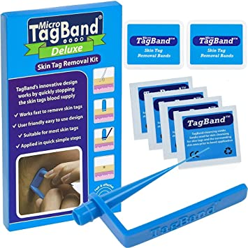 Amazon Com Deluxe Micro Tagband Skin Tag Remover Kit With Extra