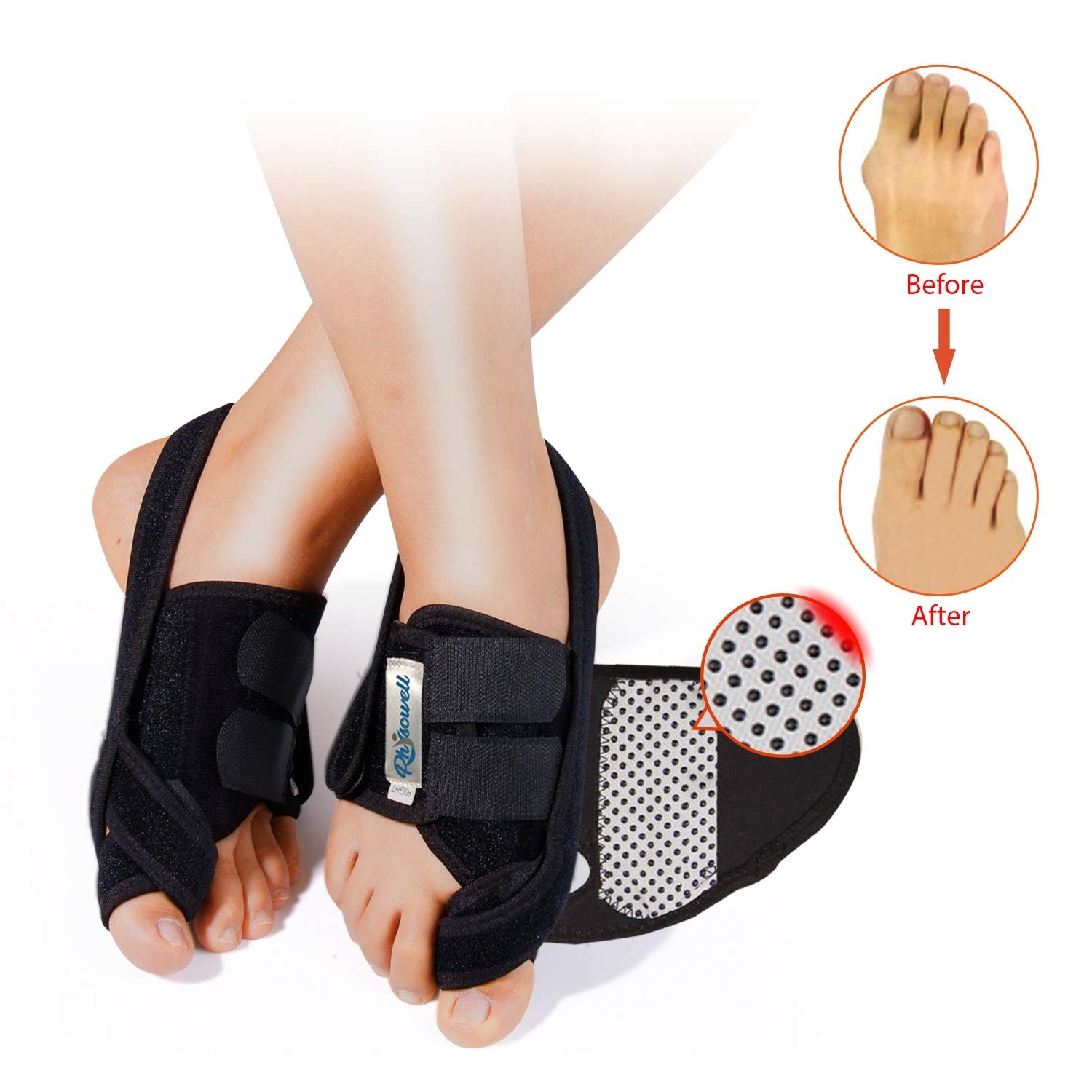 Bunion Splints- Hallux Valgus Bunion Corrector Protector with Adjustable Hook and Loop Toe Straighteners - Ideal for Night Time Bunion Correction and Hammer Toe Pain Relief (L) by Physowell
