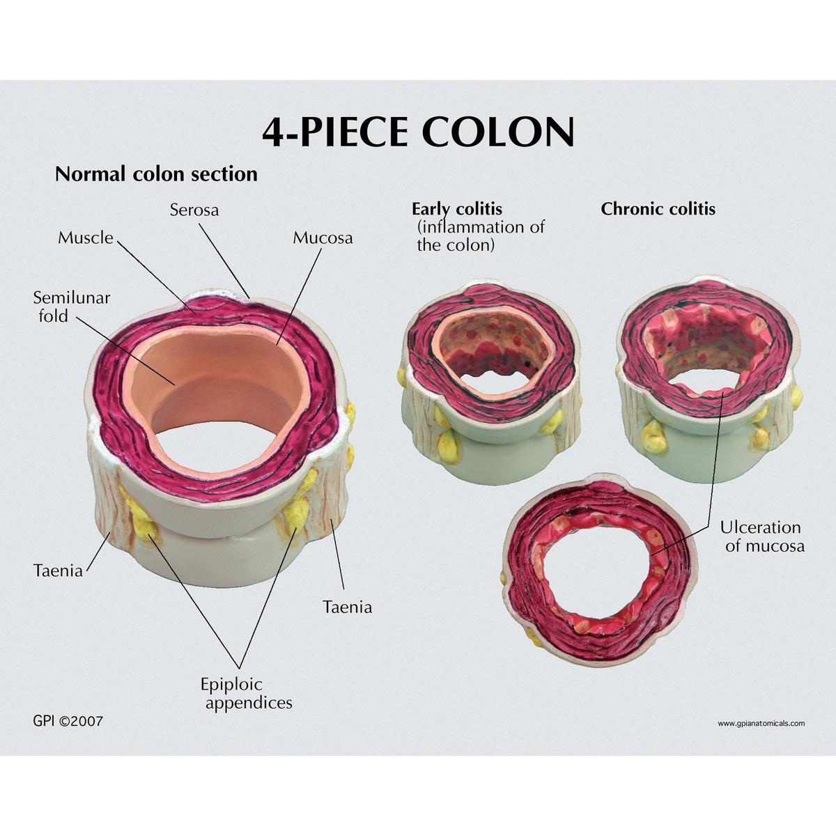 Four Piece Colon with Pathologies Model