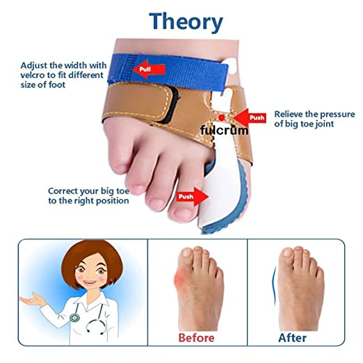 Bunion Corrector and Bunion Relief Sleeve with Gel Bunion Pads Toe separators Cushion Bunion Protector - Velcro band
