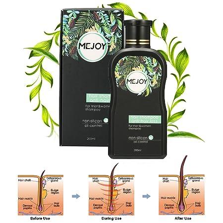 Champú Anticaída para la caída del cabello, Y.F.M shampoo natura estimula el crecimiento del cabello para Hombres y Mujeres 200 ml: Amazon.es: Belleza