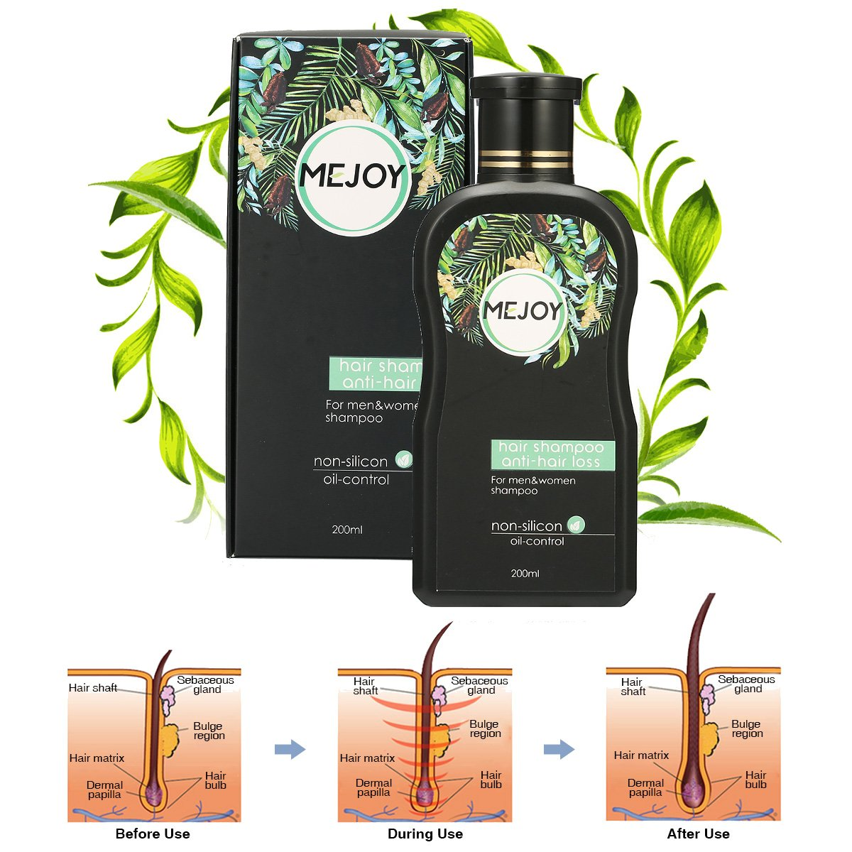 Anti-Hair Loss Shampoo For Men & Women, LuckyFine – Contains Herbal Ingredients, Helps Stop Hair Loss, Hair Growth, Stimulates Hair Re-growth Dandruff Treatment 200ML
