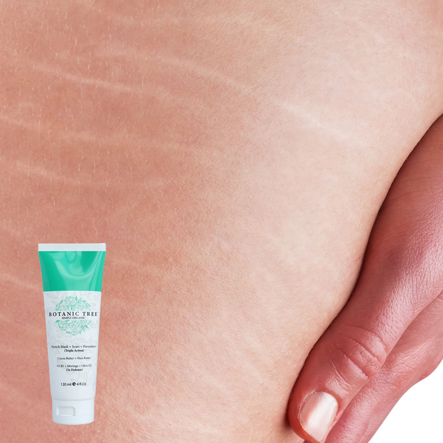 how to help decrease stretch marks