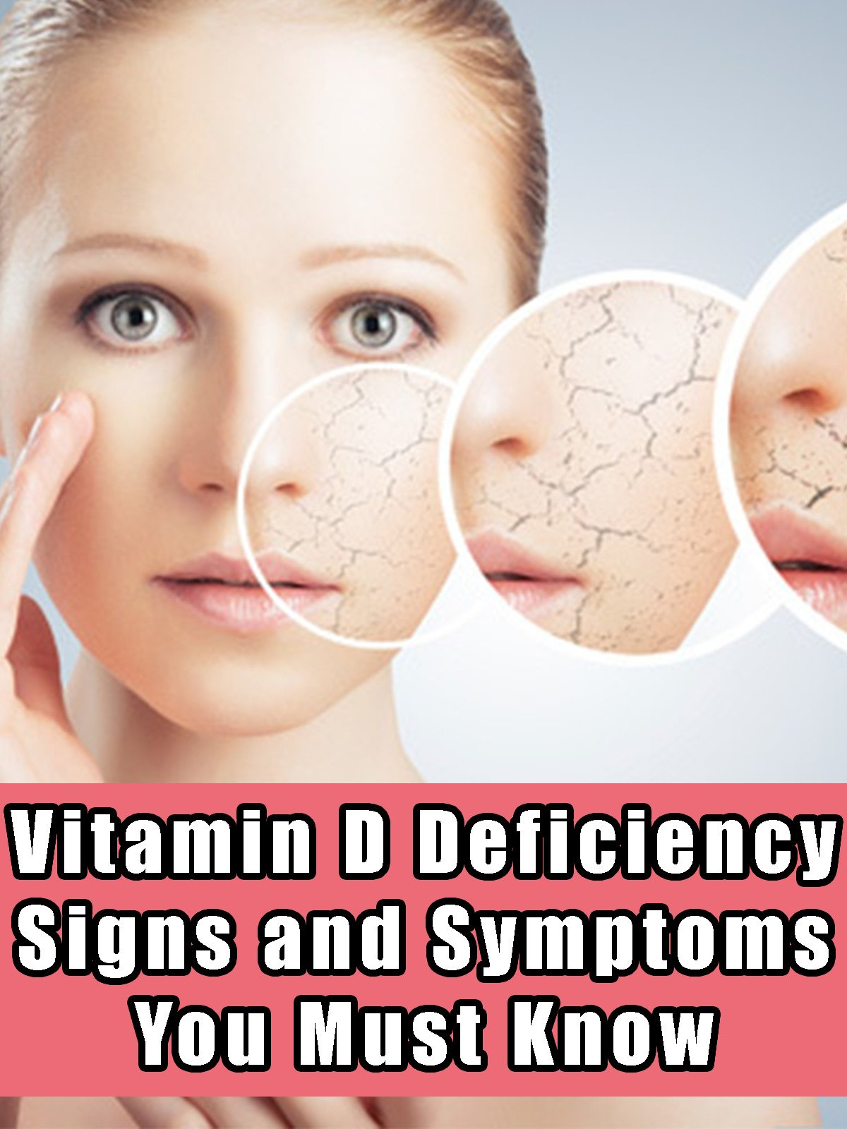 Amazon.com: Watch Vitamin D Deficiency - Signs and Symptoms You ...