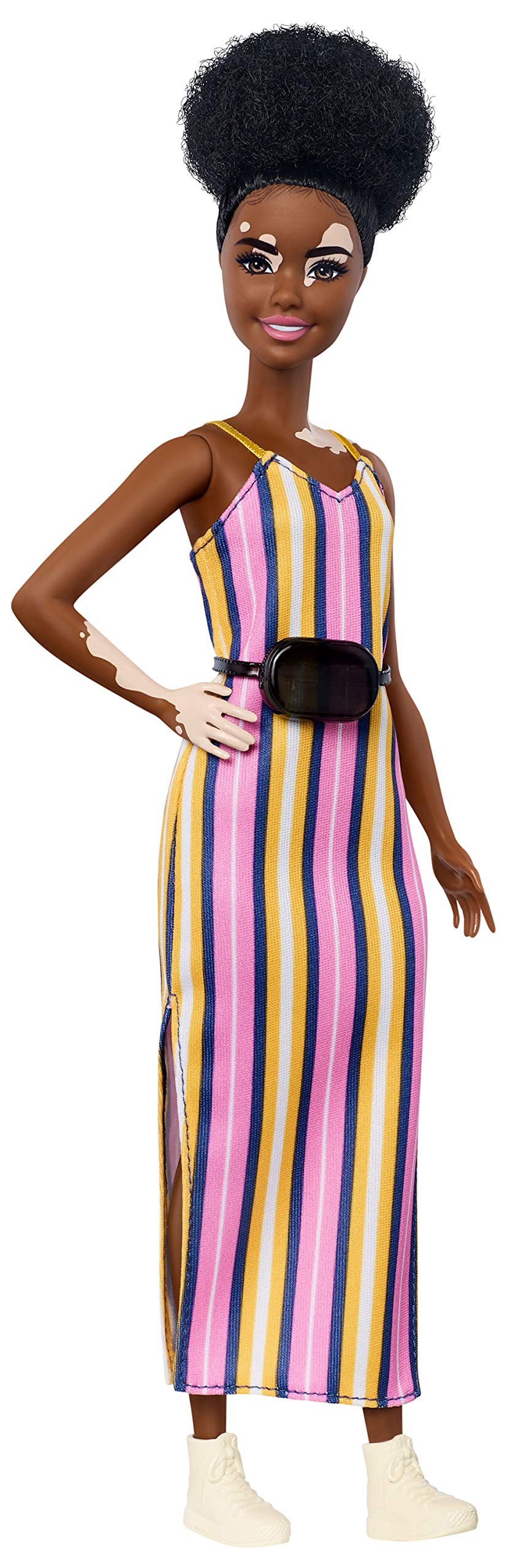 Barbie Fashionistas Doll with Vitiligo and Curly Brunette Hair Wearing Striped Dress and Accessories, for 3 to 8 Year Olds