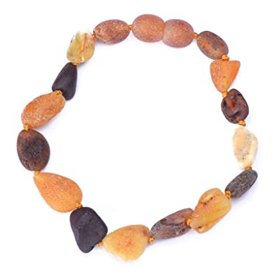 100% Genuine Baltic Baroque Amber Anklet/Bracelet Knotted from UK Dristriibutor 11-23CM H2XYga7