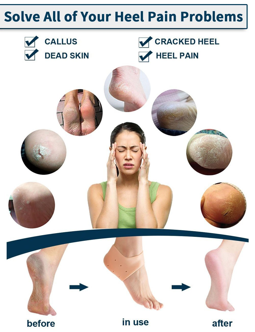 Heel Protectors, Moisturizing Gel Heel Cushions for Dry, Cracked feet by Toe Glow-2Pieces by Toe Glow (Image #5)