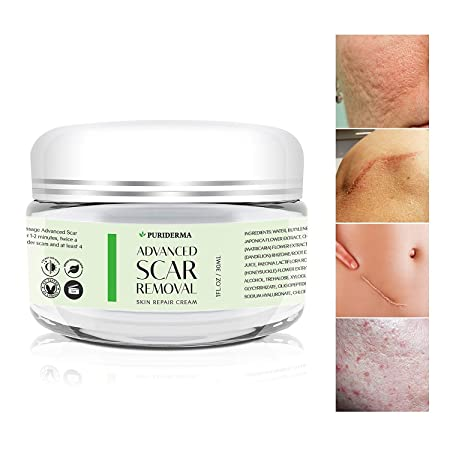Scar Removal Cream – Advanced Treatment for Face Body, Old New Scars from Cuts, Stretch Marks, C-Sections Surgeries – With Natural Herbal Extracts Formula – 30 ml