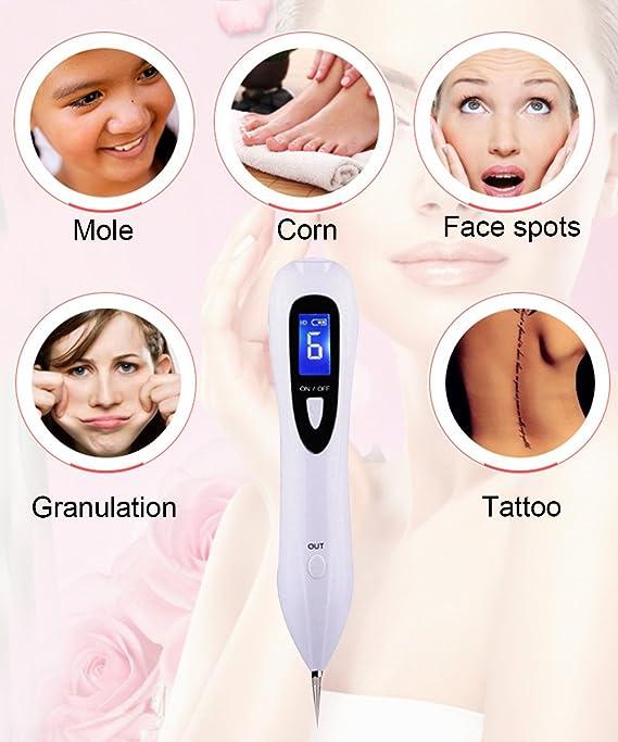 Bolígrafo de extracción de topos con pantalla LCD, portátil, con carga USB de puntos oscuros, etiqueta de piel y eliminador de tatuajes, máquina de belleza: ...