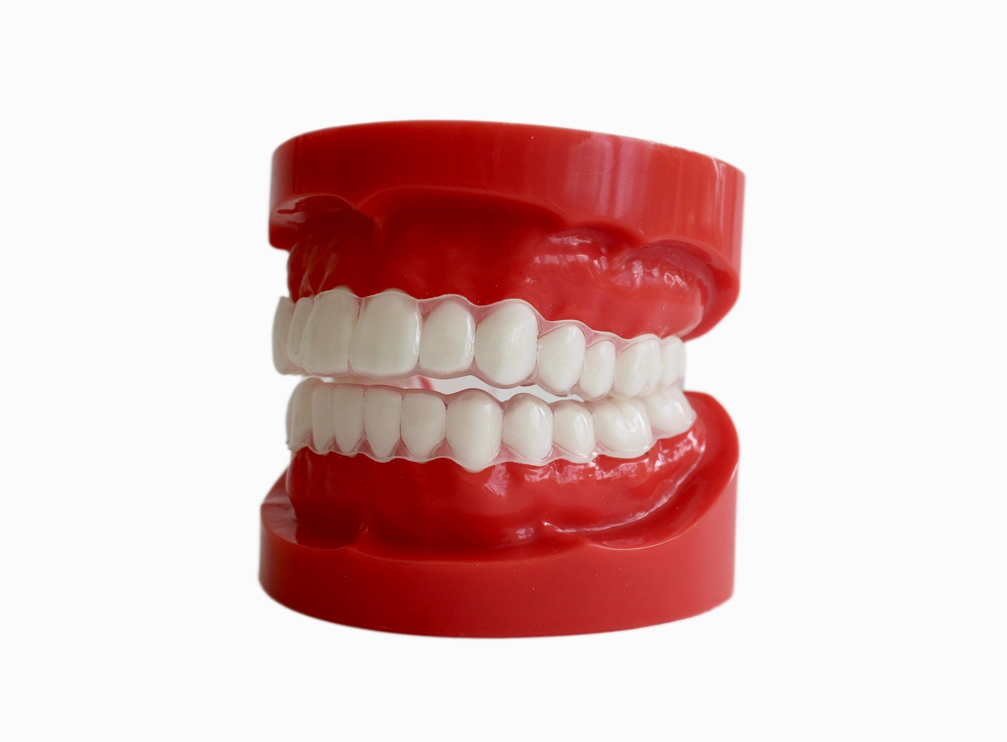 Upper & Lower Soft Dental Night Guards For Nighttime Tongue Biting. Soft Custom Fit Mouthguard To Protect Tongue Damage From Nocturnal Tongue Biting (Adult Male)