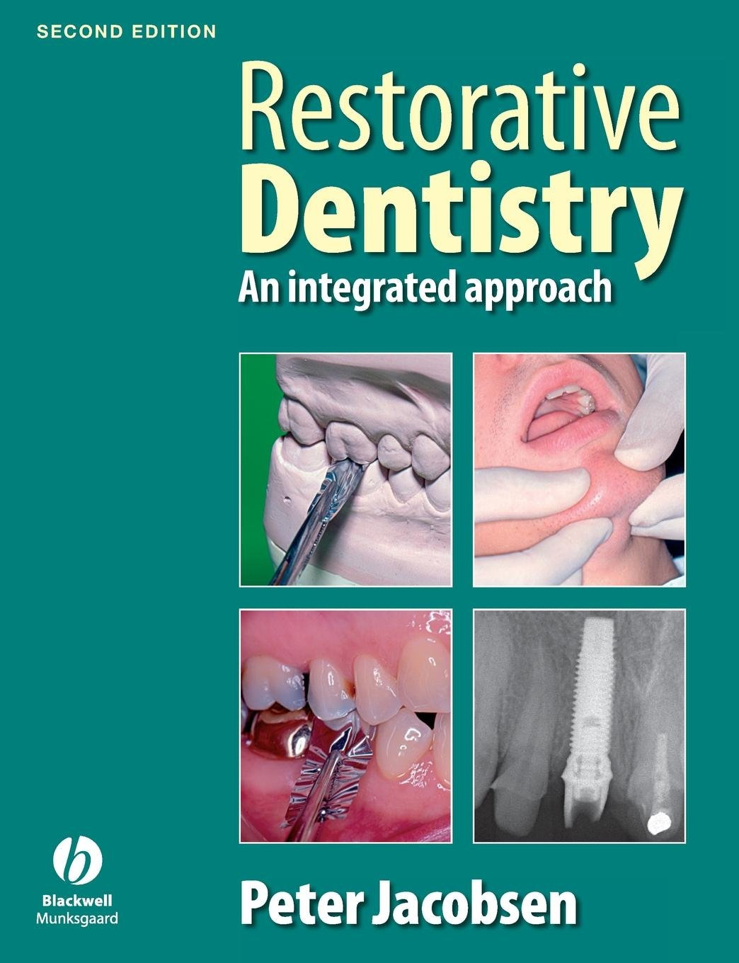 Image result for Restorative Dentistry, An integrated approach - 2nd Edition - Peter Jacobsen