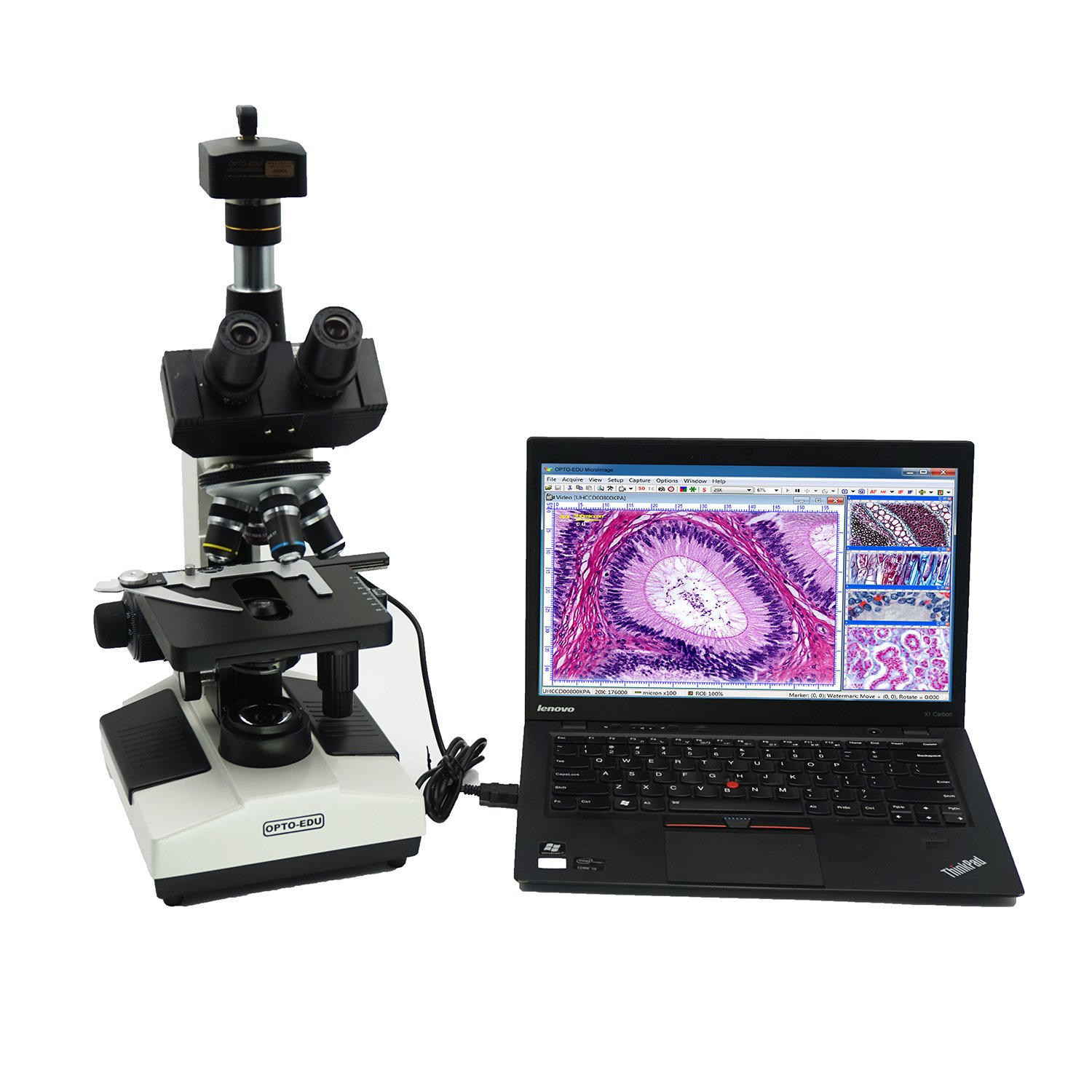 OPTO-EDU A11.1008-5M  Full Size Lab Digital Trinocular Compound LED Microscope with 10MP USB Camera and 3D Mechanical Stage, Metal, Glass, Plastic