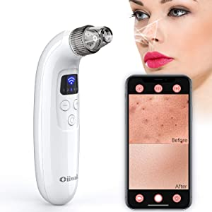 Oiiwak WiFi Blackhead Remover with Camera Pore Vacuum Acne Comedo Extractor Pimple Popper Sucker Beauty Device