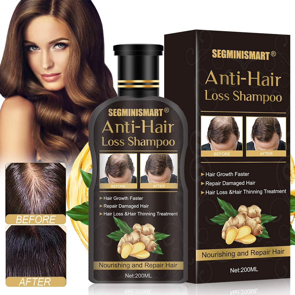 Hair Growth Shampoo,Anti-Hair Loss Shampoo,Hair Loss shampoo,Ginger Hair Care Shampoo Helps Stop Hair Loss,Promotes Thicker,Fuller and Faster Growing Hair for Men & Women by SCOBUTY