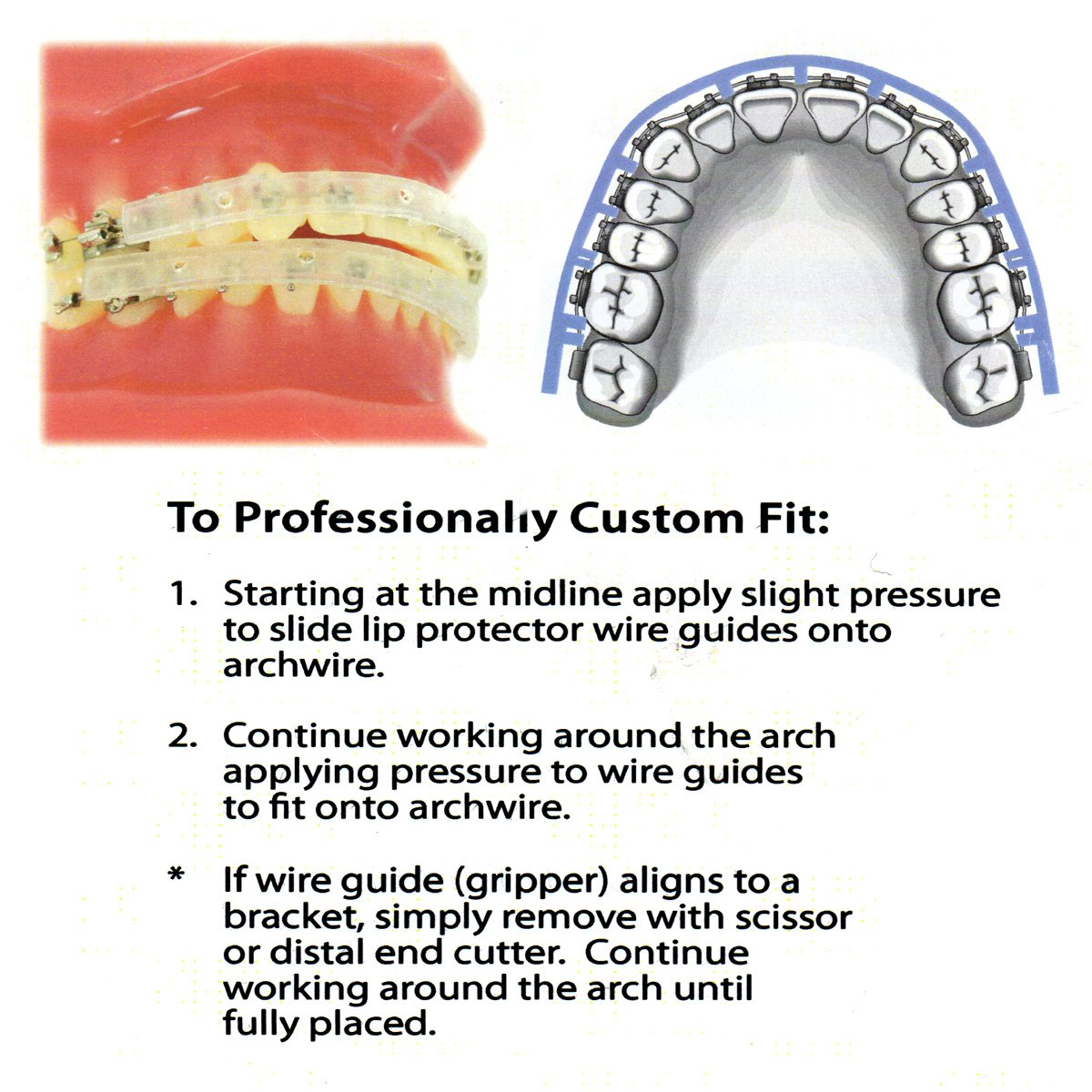 Amazon.com : Our Bestseller Orthodontic Braces Lipguard Protector ...