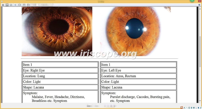 USB Iridology Camera Portable Iriscope Iris Analyzer with English ...
