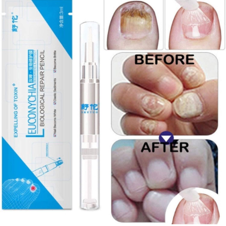 Amazon.com: Foreverharbor 3ML Fungal Nail Treatment Pen ...