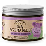 Maty's Organic Baby Eczema Relief, Heals with