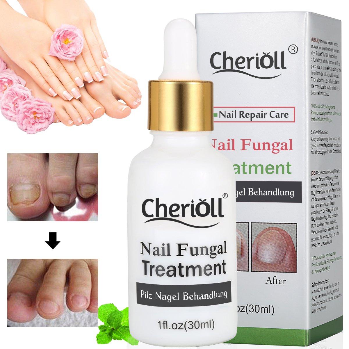Nagelpilz Öl, Pilz Nagel Behandlung, Anti-Pilz, Natürliche Anti-Pilz ...