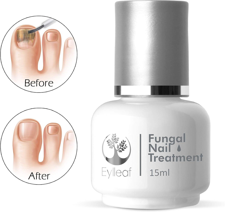 Eylleaf - Tratamiento de uñas fúngico para eliminar hongos, gel ligero para infección de uñas de los pies, ayuda a limpiar y recuperar la placa de uñas de 15 ml