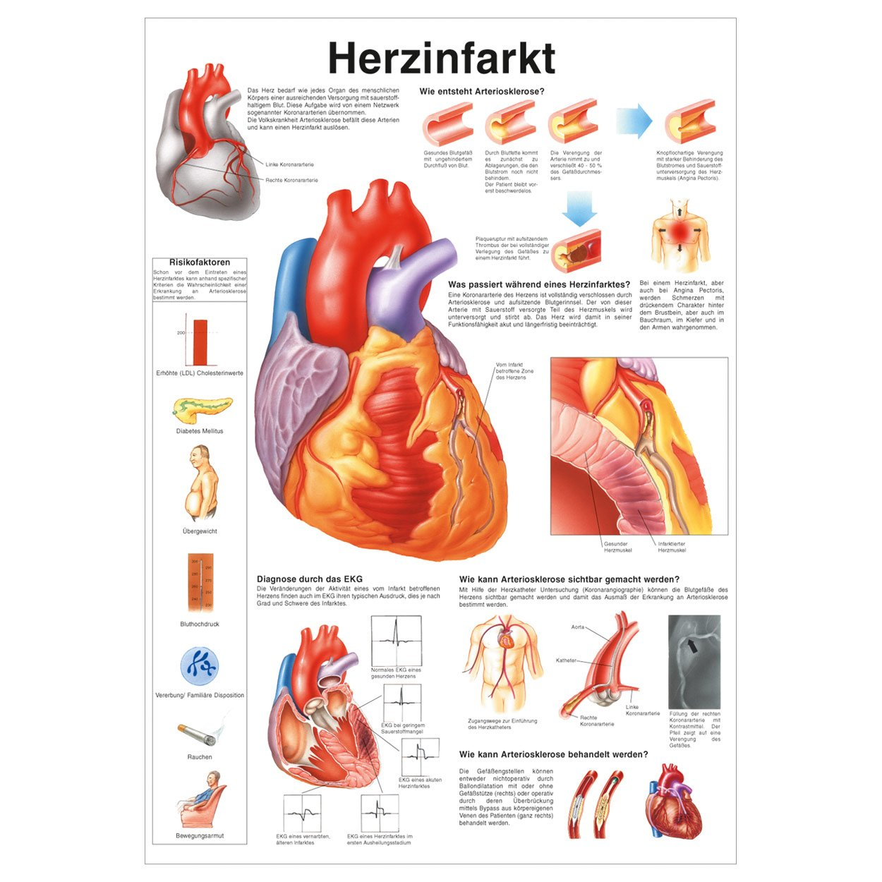 Herzinfarkt Poster Anatomie 70x50 cm medizinische Lehrmittel: Amazon ...