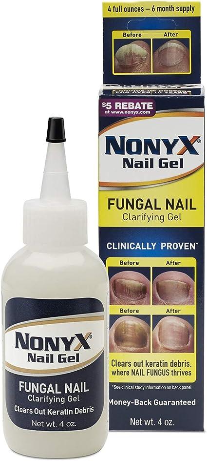 Nonyx Nail Gel 4 Oz