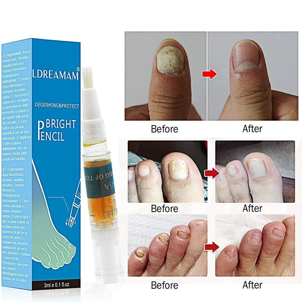 Fungus Stop,Nail Fungus,Hongo Uñas Tratamiento,Anti Hongos De Uñas,Tratamiento anti-hongos en las uñas,Tratamiento anti hongos de uñas,Apto para dedos ...