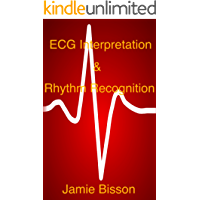 ECG Interpretation & Rhythm Recognition