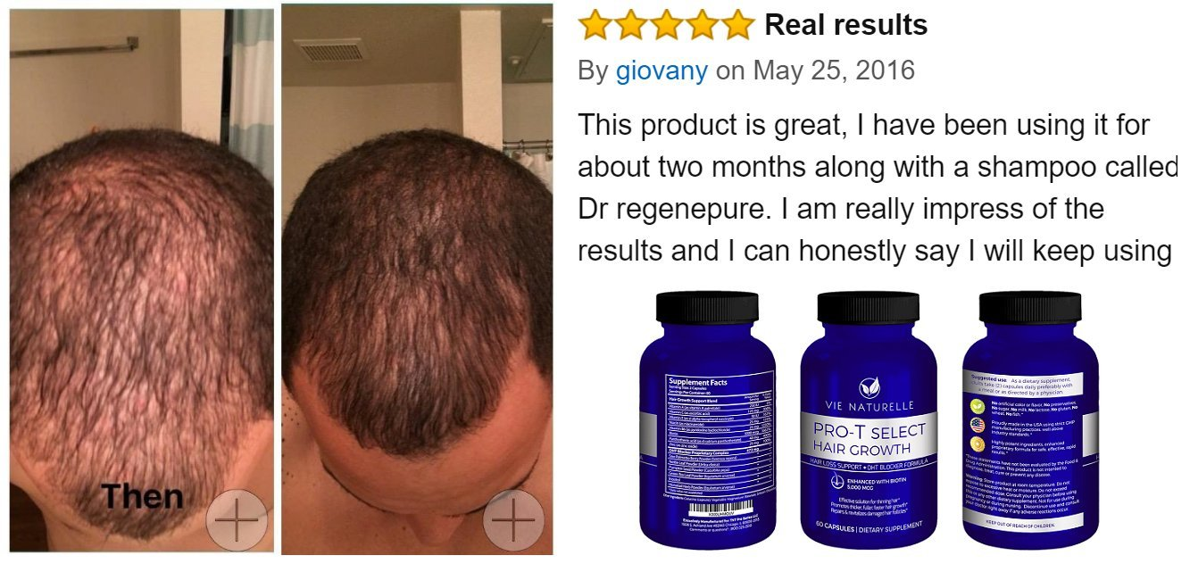 Amazoncom  Vie Naturelle Hair Loss Vitamins Supplement For Fast - How much biotin to take for hair growth