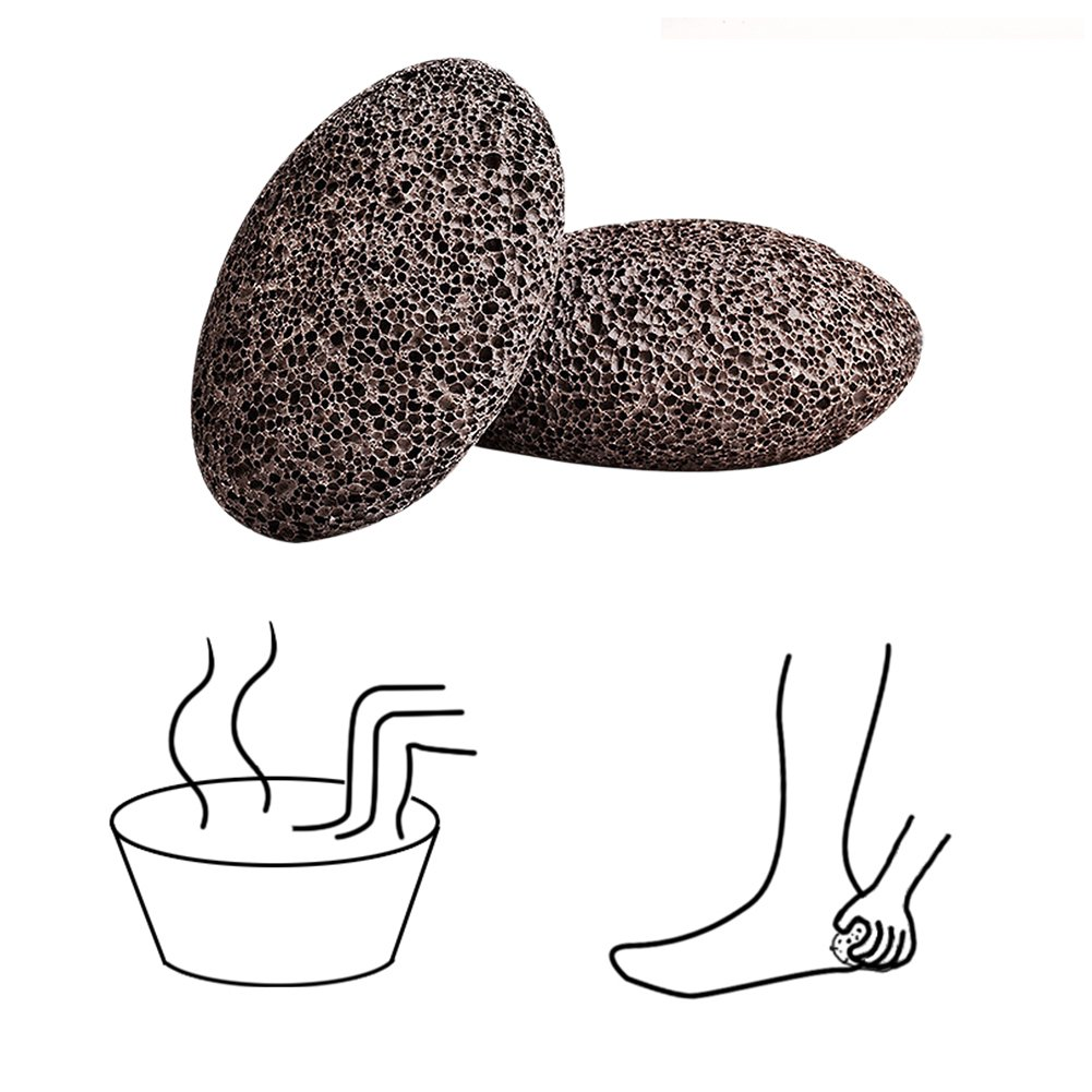 Piedra pómez, D & & R duro muerto piel callos (piedra volcánica natural para cuidado de los pies exfoliante Pedicura Herramientas, Rojo, pack de 2 D&&R