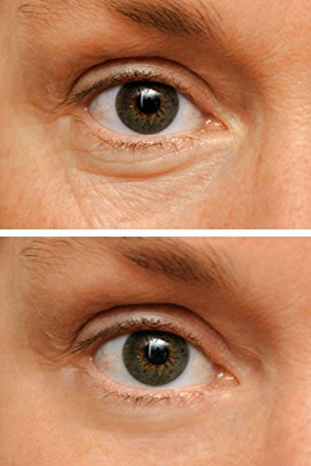 WUNDER2 WUNDERLIFT 60 Seconds Wrinkle Reducer - Eye Serum to Reduce Lines and Dark Circles by Wunder2 (Image #4)