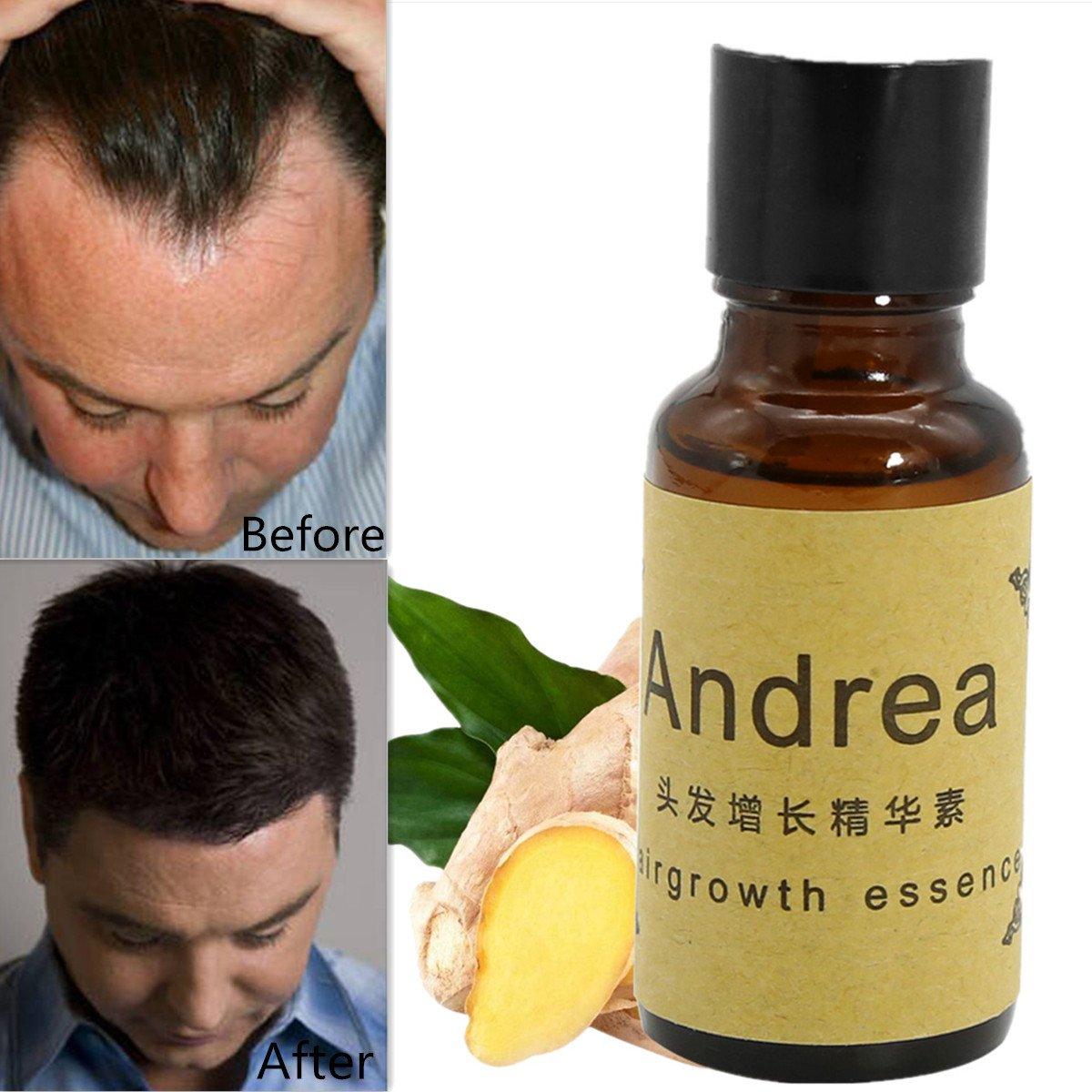 HJR Natural Hair Growth Essence/Anti-hair Loss oil liquid making your hair stronger& healthier 20ml
